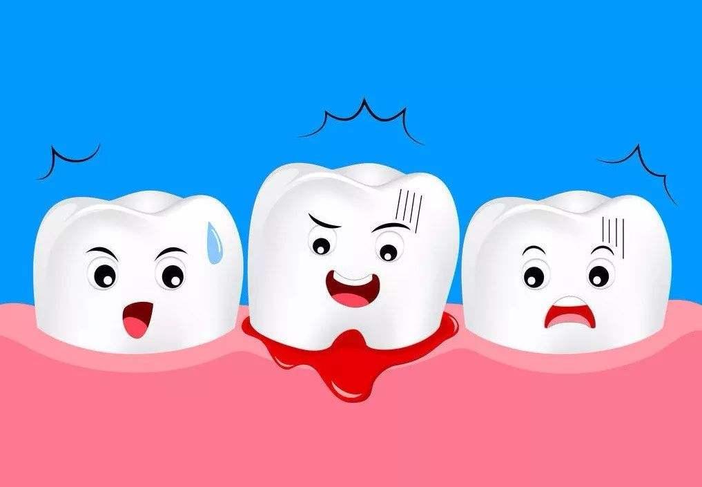 牙周炎的简单介绍