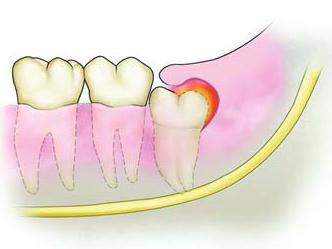 智齿冠周炎是什么样子的