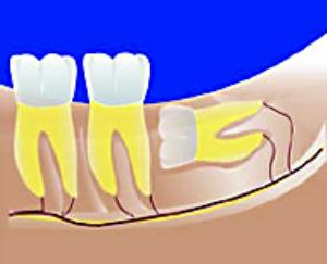 阻生智齿生长位置图片