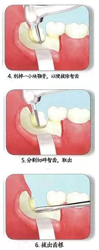 智齿拔除的过程步骤图片