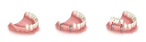 多颗牙缺失修复