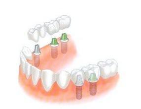 多颗牙齿缺失种植牙好吗?
