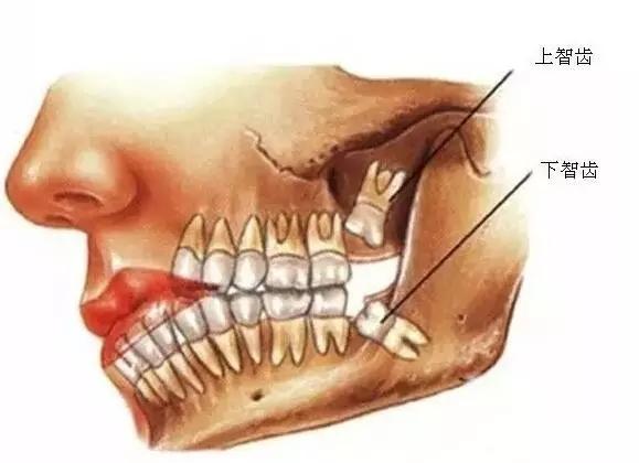 牙齿智齿生长图片
