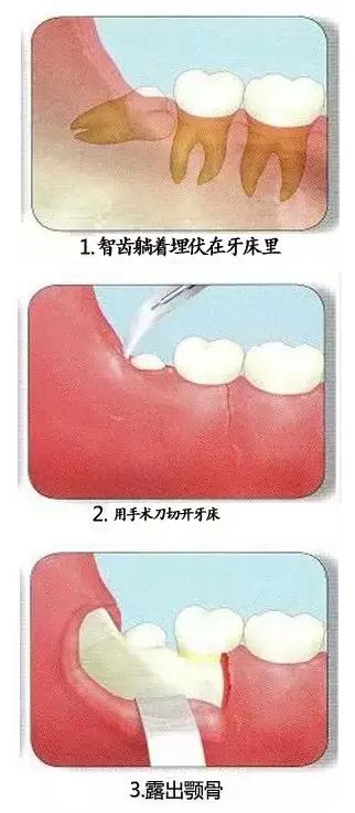 智齿拔出的过程图片