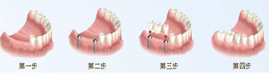 种植牙如何选择种植体?
