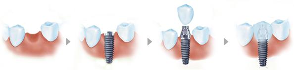 即刻种植牙适合哪些人群?