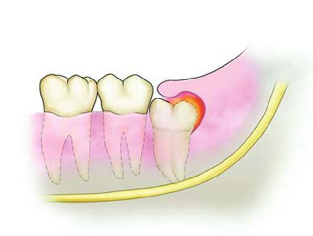 深圳智齿冠周炎治疗需要多少钱?