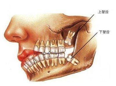 智齿生长位置图片