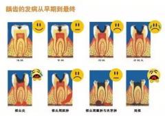 龋齿不痛需要治疗吗