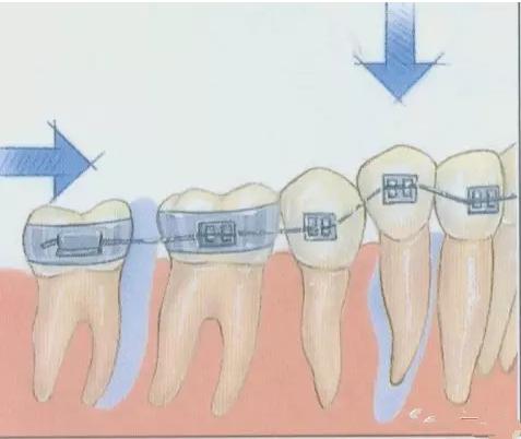 牙齿矫正过程图解