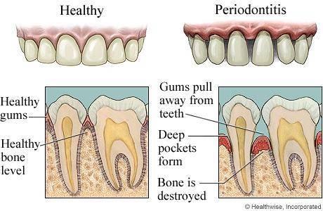 牙齿结构图片