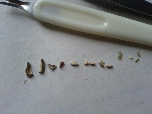 手抠牙结石图片