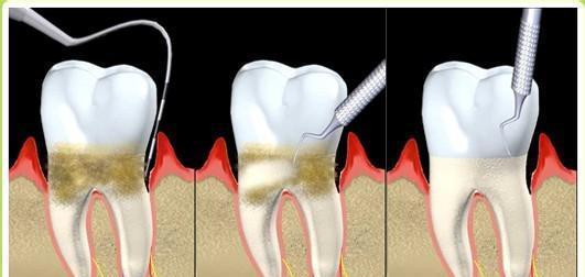洗牙清理牙结石