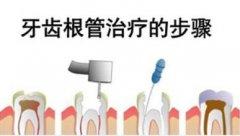 牙痛需要做根管治疗吗?