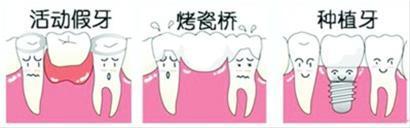 假牙类型图片
