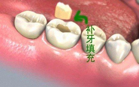 补牙后的注意事项有哪些?