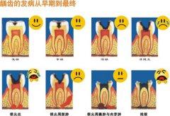 儿童龋齿引起的牙痛怎么办?