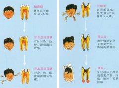 深圳儿童龋齿补一颗牙多少钱?