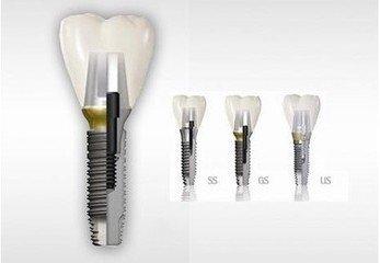 种植牙修复半口牙缺失的优势