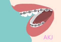 牙齿拥挤的简单介绍