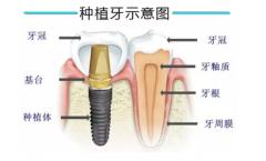 深圳即刻种植牙一般多少钱一颗