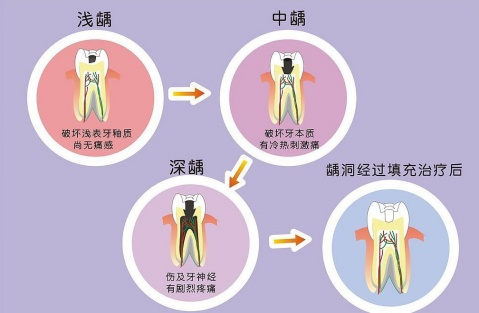 爱康健齿科补牙价目表