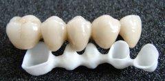 换一颗牙齿要多少钱?