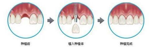 单颗牙齿种植