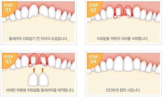 、树脂贴面、硬质贴面三种,其特点和品质是不同的,价格也不一,树脂贴面是直接用树脂在顾客口内制作的贴面,其较大的优点是方便、快捷、迅速,价格也较低。 2.自身的口腔条件:如果没有严重的口腔疾病,而是轻度的氟斑牙等问题,那么解决起来价格是比较低的,如果牙齿还有大块缺损,那么修复难度增加,费用也会有所增加,如果还有严重的牙周病,需要行治疗,整体价格就会更高一些。 相对而言,目前临床上选择瓷贴面的人比较多,但是相比树脂贴面和硬质贴面来说,