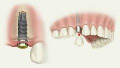 种植牙后一般会疼几天