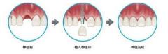 种植牙过程图解