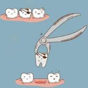 女性月经期为什么不能拔牙