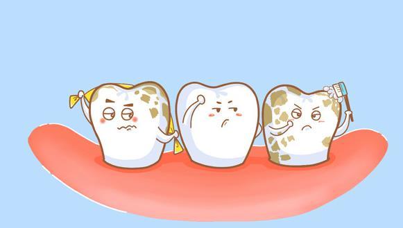 深圳爱康健口腔医院 牙齿美白 氟斑牙  氟牙症表现在牙齿上是黄色的