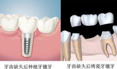 固定假牙多久换一次?