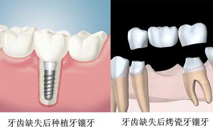 固定假牙多久换一次
