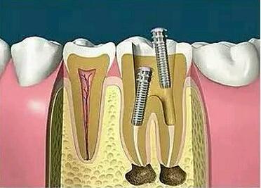 牙齿根管治疗步骤