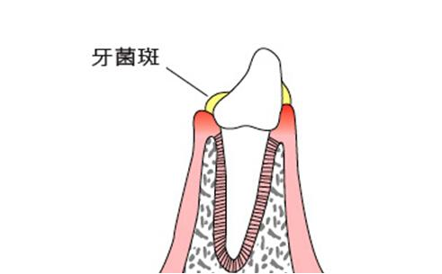 什么是牙菌斑