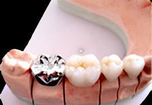牙冠的种类及价格