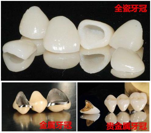 牙冠的种类
