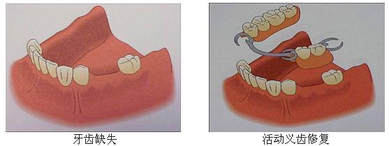 假牙的种类及价格表