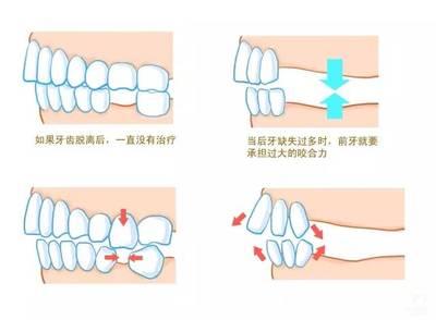 2,一颗牙齿缺失后,如果不及时修复,牙齿咀嚼起来会没有劲儿,特别