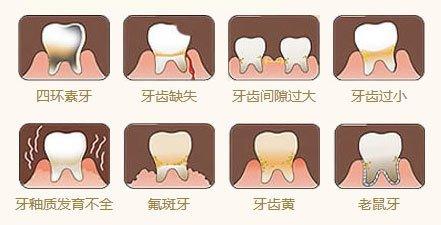 牙釉质发育不全做牙齿贴面结果好吗