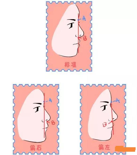 判断骨性龅牙和牙性龅牙