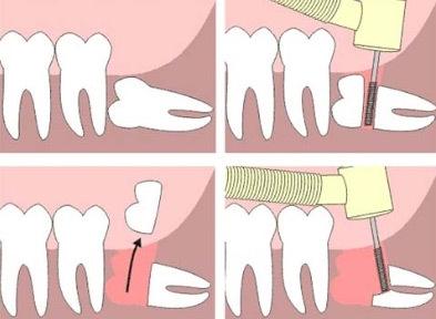 智齿冲洗消炎步骤图