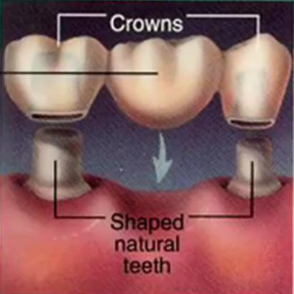 牙龈感染图片素材