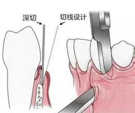 拔牙的基本步骤