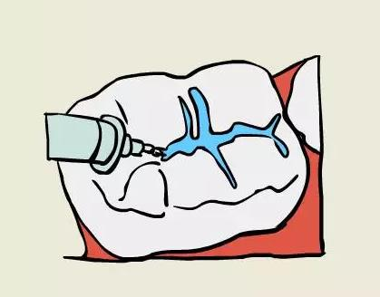 大蛀牙简笔画卡通图片
