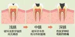 牙齿龋洞填充多少钱