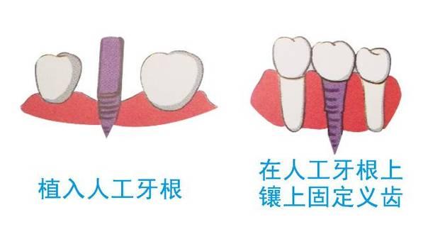 医生表示,特别是种植牙一定要注意术后注意事项,只有严格遵从医生的嘱咐,才能得到很好的效果。  种植牙拆线后注意事项 爱康健口腔医院医生表示,一般情况下,种植牙拆线后,需要注意以下事项: 1、术后24小时内可以用冰袋或者毛巾冷敷肿胀疼痛区域,可以适当缓解。 2、术后72小时之内尽量食用一些温软的食物,以免刺激种植牙,影响稳定性。 3、不要用舌头或者用手触碰种植牙,以免影响稳定。 4、尽量避免抽烟喝酒,还有生活作息不规律等,影响恢复情况。 5、出现剧烈疼痛、以及麻木或者是出血等异常情况需要及时到医院就诊。 还