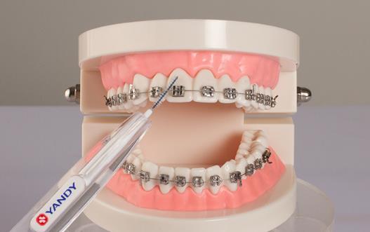 正畸患者的正确刷牙方法图解